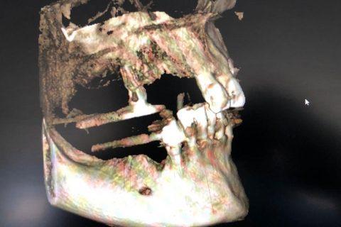 Tratamientos basados en implantes